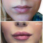 lips_drbrankorudic-2