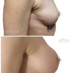 before and after photo of breast augmentation