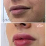 lips_drbrankorudic-6