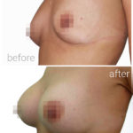 breast_drbrankorudic6
