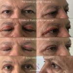 drbrankorudic-blepharoplasty3