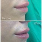 lips-drbrankorudic-10