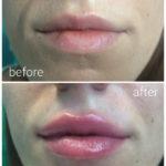 lips-drbrankorudic-9