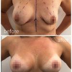 breast_drbrankorudic10-sakriveno