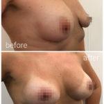 breast_drbrankorudic11-sakriveno