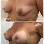 breast_drbrankorudic9-sakriveno
