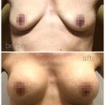 breast_drbrankorudic-13