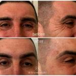drbrankorudic-botox