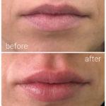 lips-drbrankorudic-12