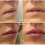 lips-drbrankorudic-13