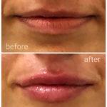 lips-drbrankorudic-14-2
