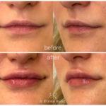 lips-drbrankorudic-15